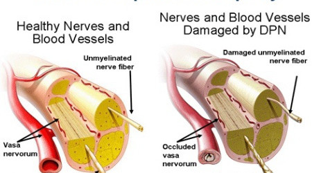 Symptoms of Nerve Damage to the Intestines and Colon