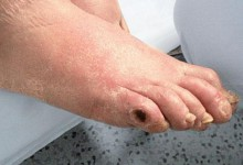 Foot ulcers and other problems with foot