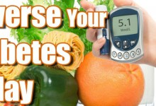 Type 2 Diabetes: Etiology and reversibility