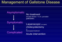 How Should Asymptomatic Gallstones Be Managed?